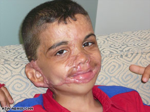 When CNN first met Youssif and his family, his mother said she longed to see her son's smile return.