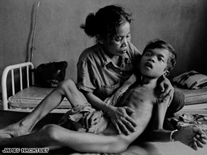 A mother comforts her young son who is suffering from TB meningitis.
