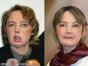 Isabelle Dinoire underwent the first partial face transplant; shortly after her surgery (left) and 10 months later (right).