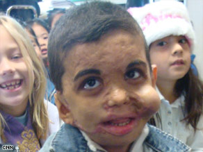 Youssif was known for his bright smile before he was attacked by masked men.