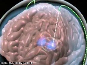 In deep brain stimulation for depression, tiny electrodes are implanted into a specific node of the cerebral cortex.