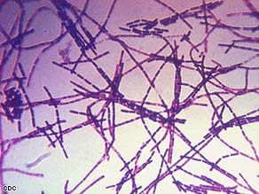 Anthrax infetions result from bacteria called Bacillus anthracis.