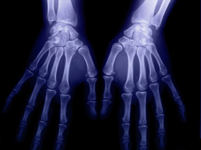 Fosamax is prescribed to prevent and treat osteoporosis, in which bones become thin and weak.