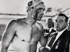 Hungarian water polo player Ervin Zador is covered in blood in the 1956 match against the Soviet Union.