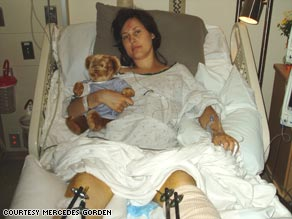 All the bones in her legs were shattered and her spine was fractured. She's had nine surgeries and physical therapy.