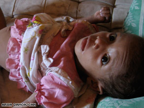 Baby Maria weighs just 10 pounds at 15 months due to malnutrition in West Timor.