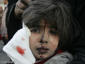 A Palestinian boy wounded by an Israeli missile awaits treatment Saturday outside a hospital in Gaza City.