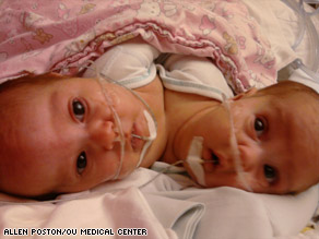 A team of 15 doctors and medical staff separated the conjoined twins in six hours of surgery.