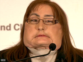 Connie Culp, 46, was identified as the first recipient of a face transplant in the United States.