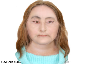Culp spoke at a news conference Tuesday where she was identified as the first U.S. recipient of a face transplant.