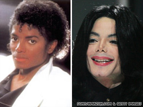 Vitiligo affects people of all ethnicities, and the spots caused by the condition can be seen on Caucasian skin.