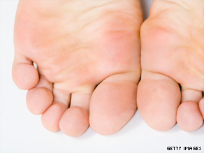 A neuroma feels like a shooting pain in the ball of the foot; it is caused by pressure on a nerve.