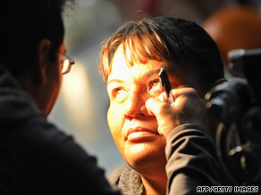 A woman gets her eyes tested as volunteers offer free medical services to those without health insurance in Los Angeles.