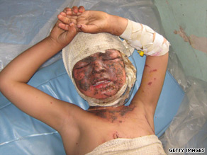 An Afghan child allegedly hurt during a U.S.-led air strike earlier this year.