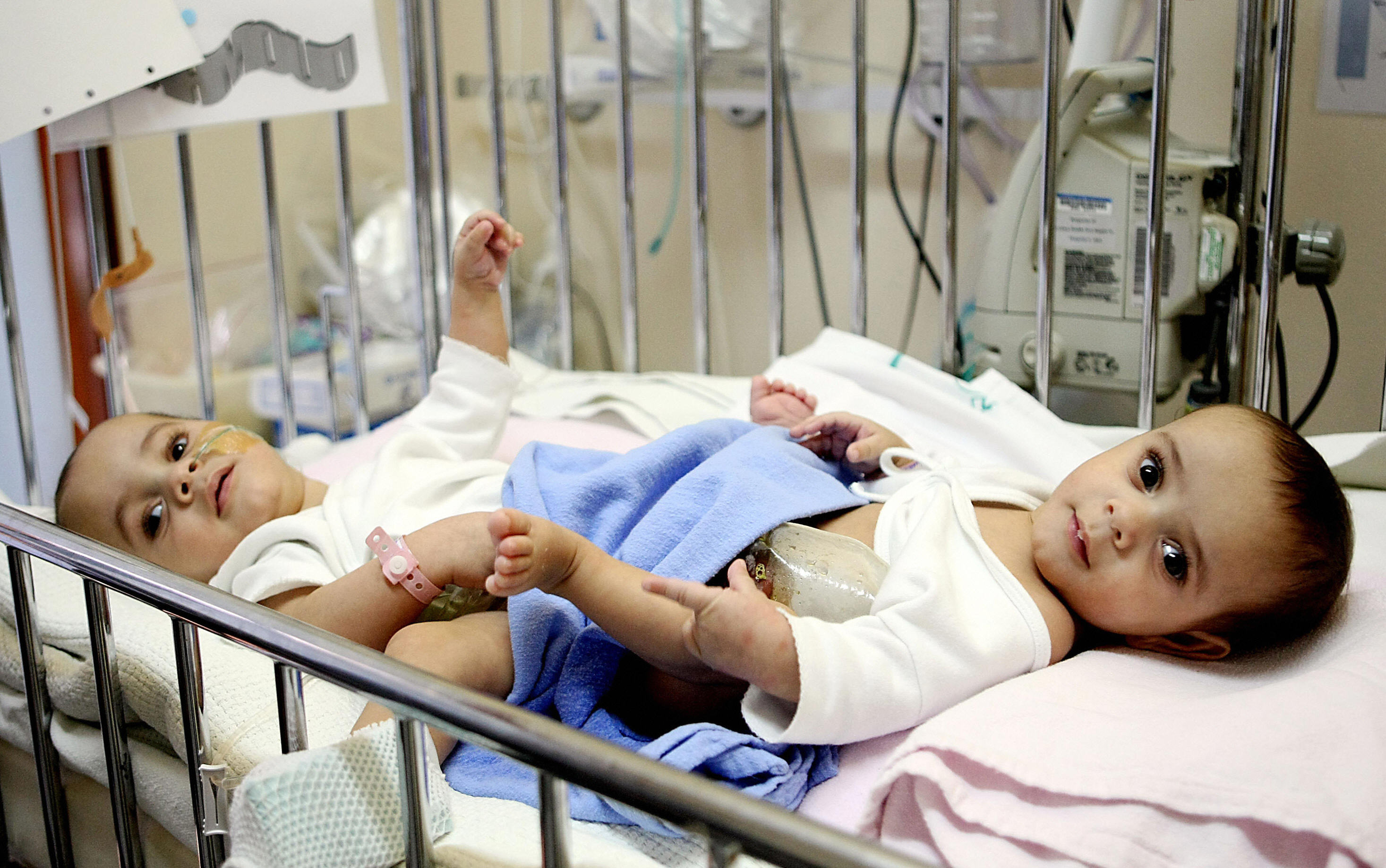 -/AFP/Getty Images. Egyptian conjoined twins Hassan (L) and Mahmud (R) at the National Guard hospital in the King Abdulaziz Medical City in Riyadh. The Twins will undergo a separation surgery today. King Abdulaziz Medical City has become internationally acclaimed for the separation of conjoined twins.