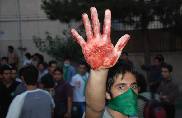A protestor holds up a hand with blood during an opposition rally where Iranian supporters of defeated reformist presidential candidate Mir Hossein Mousavi demonstrated in the streets on June 15, 2009 in Tehran, Iran. Getty Images