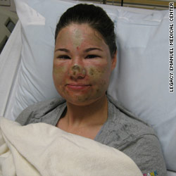 Police: Washington woman admits acid attack was hoax