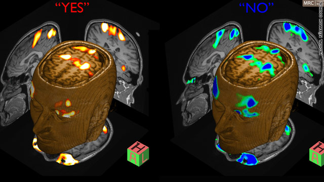 MRI scan shows different responses in the brain after the patient is asked different questions.