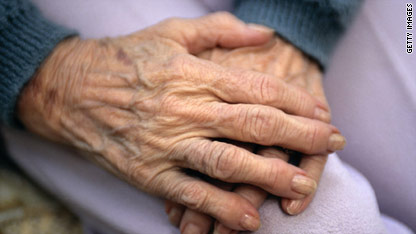 malnutrion in the elderly However, the groups who are most at risk from malnutrition are: the elderly - particularly those who are in hospital, or institutionalised, people with low incomes, .