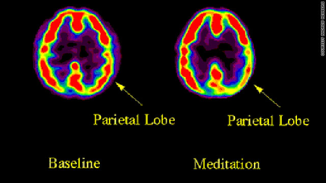 Can meditation change your brain? Contemplative neuroscientists believe it can