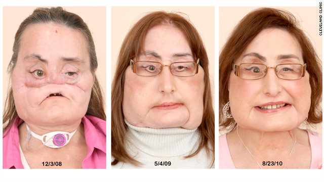 Face transplant recipient and donor&#039;s family meet