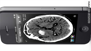 The iPhone app displays brain-scan images in high resolution on the iPhone 4.