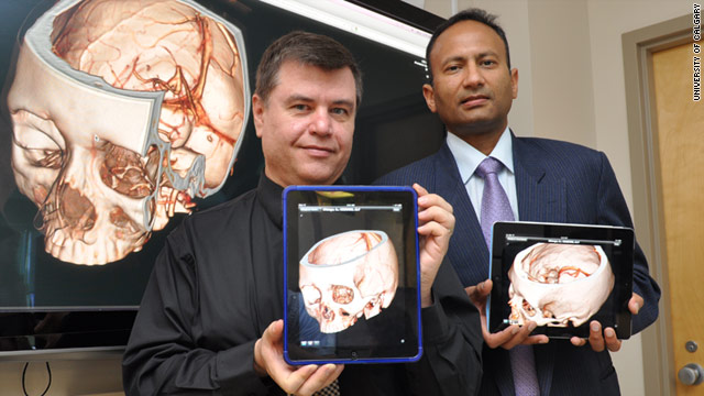 Ross Mitchell, left and Mayank Goyal display the ResolutionMD Mobile iPad app, which could help doctors diagnose strokes.