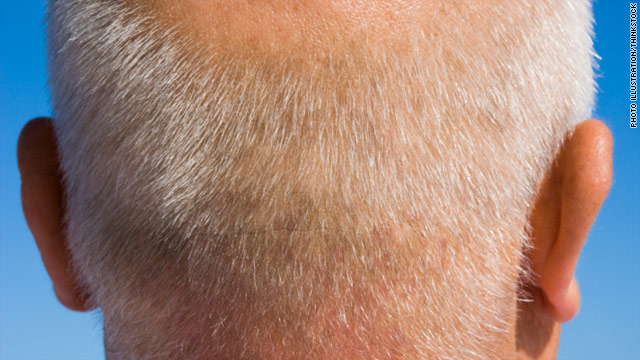 Balding may be a stem cell problem
