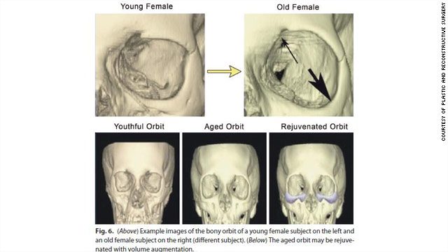 Aging facial bones could cause wrinkles, crow's feet