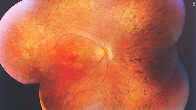New research sheds light on RP blindness