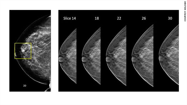 3-D mammogram system approved