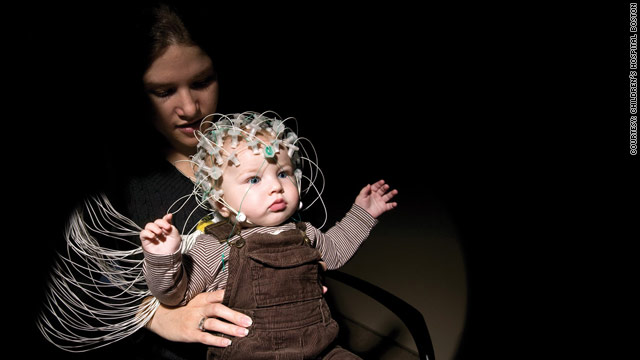 Brain scans may someday detect autism