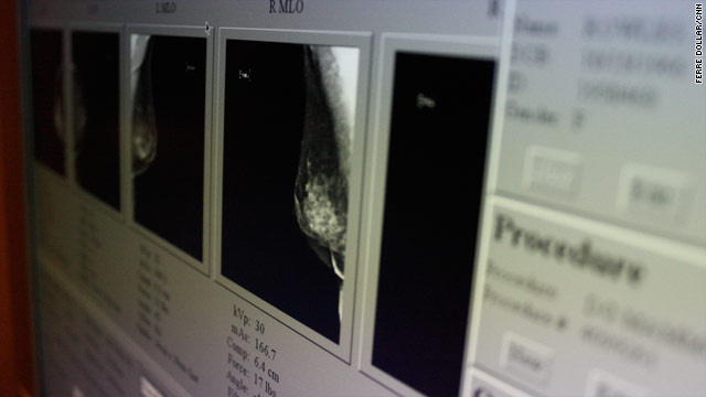 Breast cancer ID'd more accurately by docs who see more scans