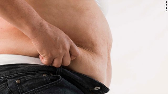 Riskier weight loss surgery gets results