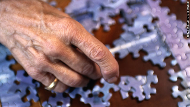 Misdiagnosis common in early-onset Alzheimer's