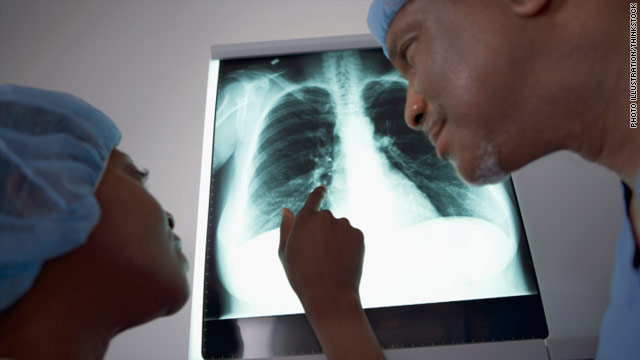 Simplifying treatment for TB without symptoms