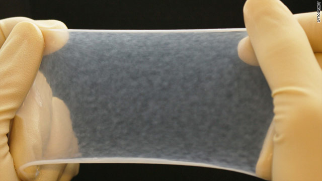 Engineers create human blood vessels from skin cells