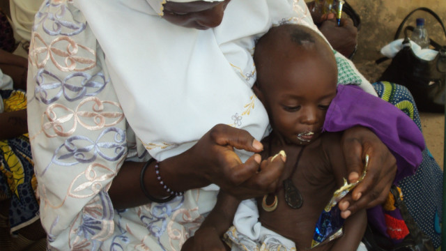 The funny sounding nut paste that's saving children's lives in Somalia