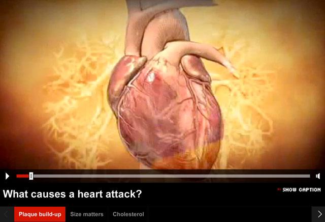 The 'heart attack proof' diet? - CNN com