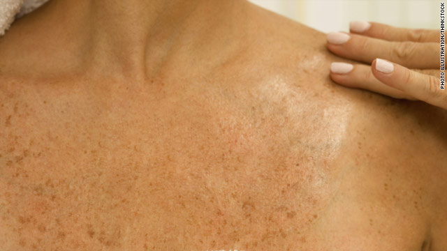 Skin cancer drug approved early