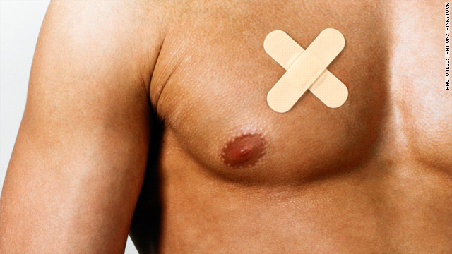 What the Yuck: Normal-weight guys with breasts