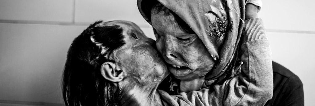 Tim Hetherington World Press Photo World Press Photo Prizes