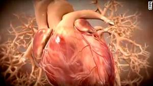 Heart attacks: What you should know