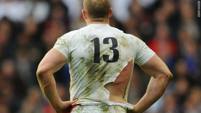 A red rose to a bull: England's Mike Tindall bears the scars and a torn shirt after finding himself on the end of a few boots while at the bottom of a ruck. 