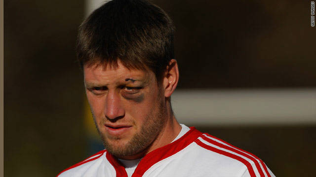 Ireland's Ronan O'Gara sports a classic shiner training with the British and Irish Lions in South Africa in 2009. The same player was on the receiving end of a furious attack from Australian Duncan McRae during a match in 2007.