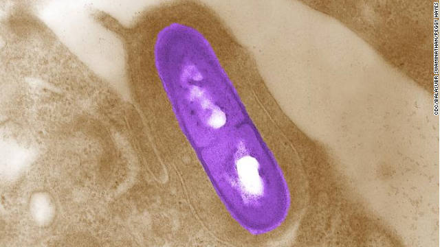 What you need to know about Listeria monocytogenes