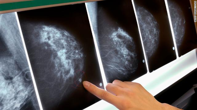 Blood test may signal breast cancer's return