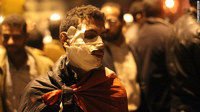 An injured Egyptian protester in heavy face bandages walks in Tahrir Square in Cairo on November 23, 2011. 