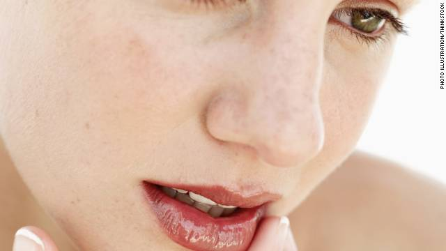 Gene could be factor in frequent cold sores