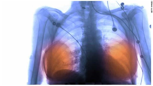 Francia pagará la remoción de un tipo de implantes de senos relacionados con cáncer
